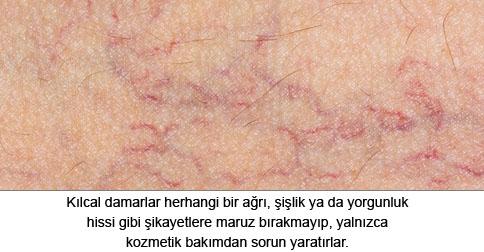 kilcal-damarlar