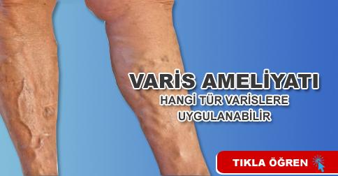 varis-ameliyati